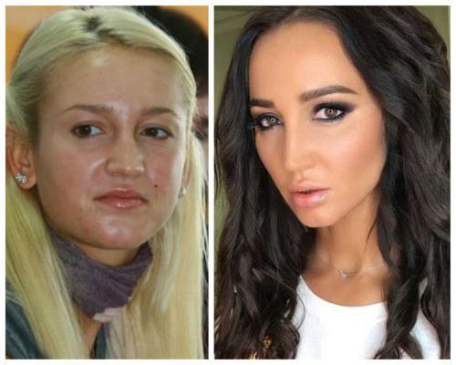 Бузова увеличила губы фото до и после