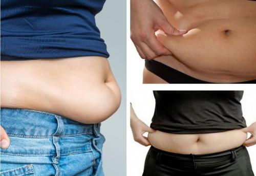Жирный живот у женщин.  Живот-фартук