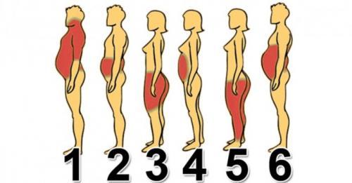 6 типов ожирения и как справиться с каждым из них.
