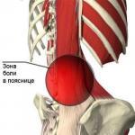 Специальные упражнения при болях в пояснице.
